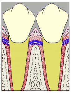 歯間水平線維(図の青い線)